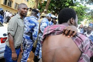 Journalist Display Beating Traces on Back - Photo Committee to Protect Journalists