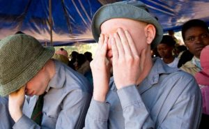 The Killing of Albinos Continues - Photo Club of Mozambique